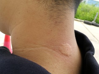 man neck after bee stings