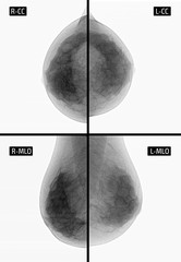 X-ray picture Mammography. Small calcinates of the left. Сancer. Negative.