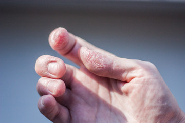dermatitis of the hands. redness