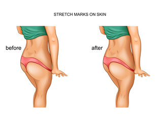 stretch marks. before and after