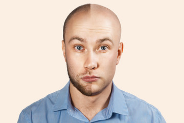 Man before and after hair loss, transplant on background