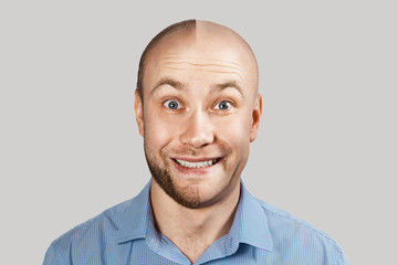 happy Man before and after hair loss, alopecia on background
