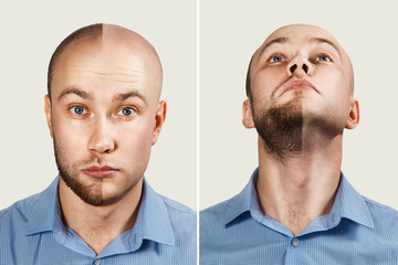 two Man before and after hair loss, alopecia on background. concept of baldness: the first man photo in front, the second - chin up