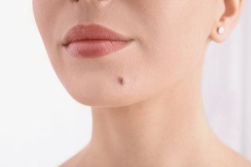 Young woman with birthmark in clinic, closeup view. Visiting dermatologist