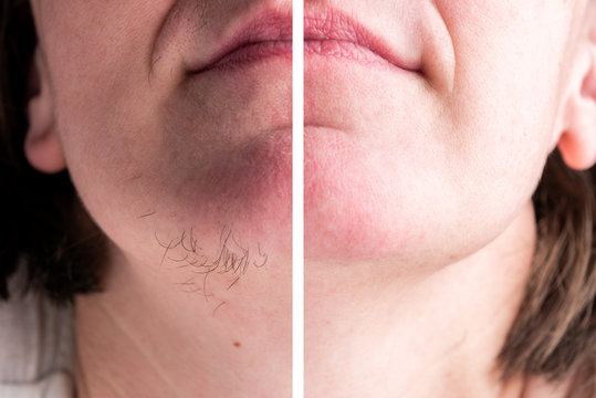 Woman with hairs on chin. Hair removal on face.