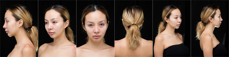 Asian Woman before applying make up hair style. no retouch, fresh face with acne, lips, eyes, cheek, nice smooth skin. Studio lighting dark background, for aesthetics therapy treatment