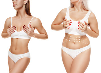 Two young thick and thin women have different figures. Comparison concept. Slim and fat girls. Fat lose, liposuction and cellulite removal concept. Marks on the woman before plastic surgery. Image is