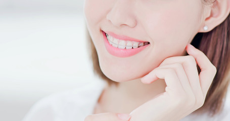 woman with retainer for teeth
