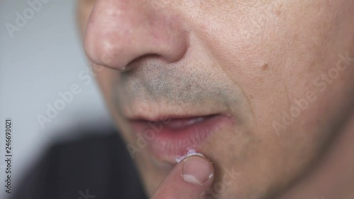 Man applying ointment on cold sore