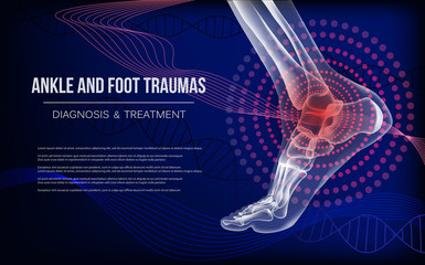 Horizontal dark blue banner for ankle and foot joints traumas