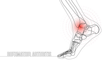 Continuous line drawing concept banner about Rheumatoid arthritis