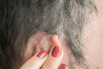 psoriasis on the hairline and on the scalp-close up, dermatological diseases, skin problems