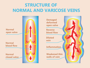 The varicose veins and normal veins