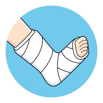 Orthopedic plaster or fiberglass cast, broken leg, bone fracture, vector illustration.