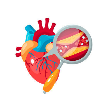Coronary artery disease concept in flat style