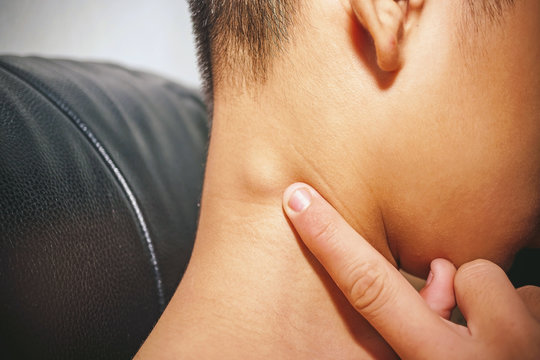 Lymph node inflammation of the throat., man with back pain