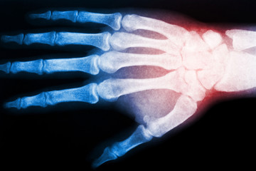 X ray scan of hand. Red color as indicator of pain spot. Skeleton fingers and wrist image. Healthcare and medical background.
