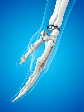 Illustration of a wrist replacement