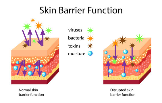 Skin barrier function, normal and disrupted, vector illustration