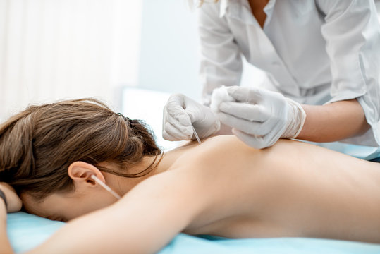 Close-up of the acupuncture medical treatment with special needles