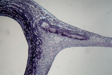 Plant cells infected by a plant parasite under the microscope.