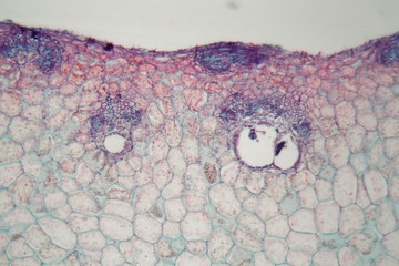 Plant cells with damages caused by a parasitic animal under the microscope