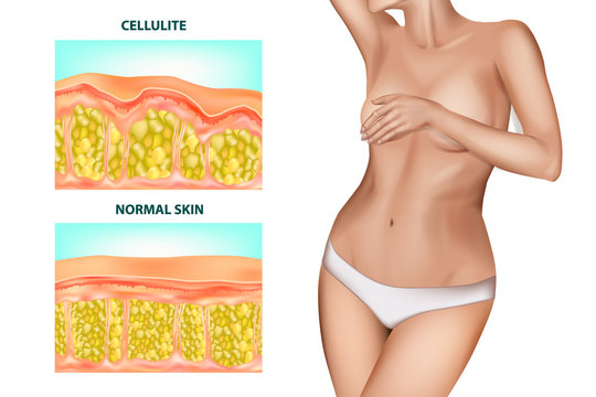 Skin cross section of Cellulite formation. Banner with the realistic beautiful women without cellulite