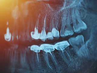 Dental xray for all teeth, side view