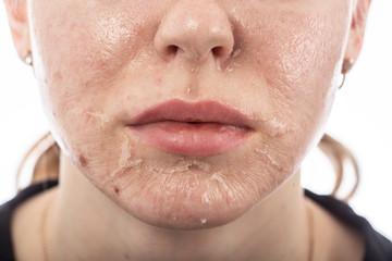 skin after peeling