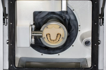Dental prosthesis isgotovlenny mill and maxilla