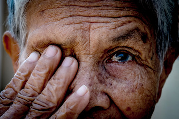 Old women cover her eye with her hand for eye testing use for medical and healthcare background