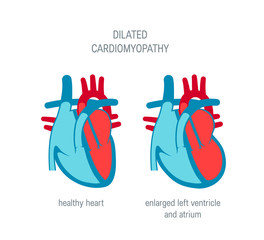 Heart disease vector concept in flat style
