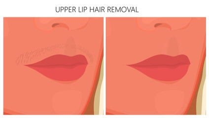 Vector illustration of upper Lip Hair removal before and after cosmetic procedure. For advertising and beauty publications