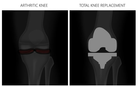 Vector illustration. Anatomy, front x-ray of an arthritic knee joint and a knee after total knee replacement. For advertising and medical publications