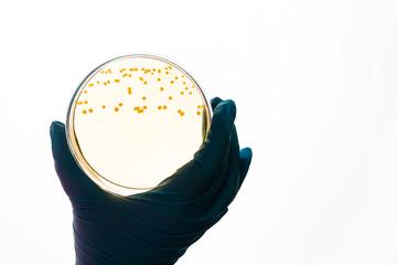 E.coli Escherichia bacteria in Petri dish