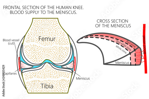 frontal section of a healthy human knee, blood supply of the meniscus (red,  red-white and white zones)  for advertising, medical publications