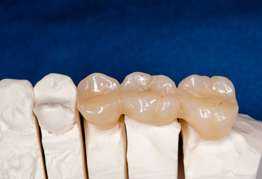 zirconia crowns on a plaster model, ready to be inserted