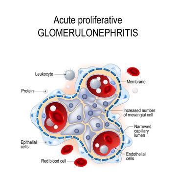 Acute proliferative glomerulonephritis.
