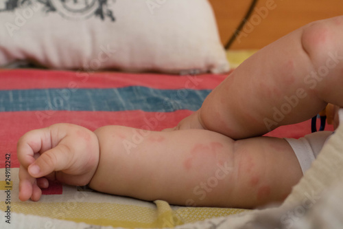 A young baby with hives