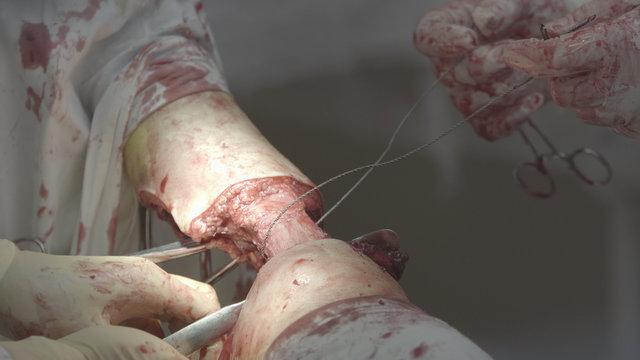 Amputation With Gigli Saw