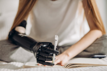 ability of controlling artificial arm. writer with a prosthetic arm creatinf a novel, art, willpower.