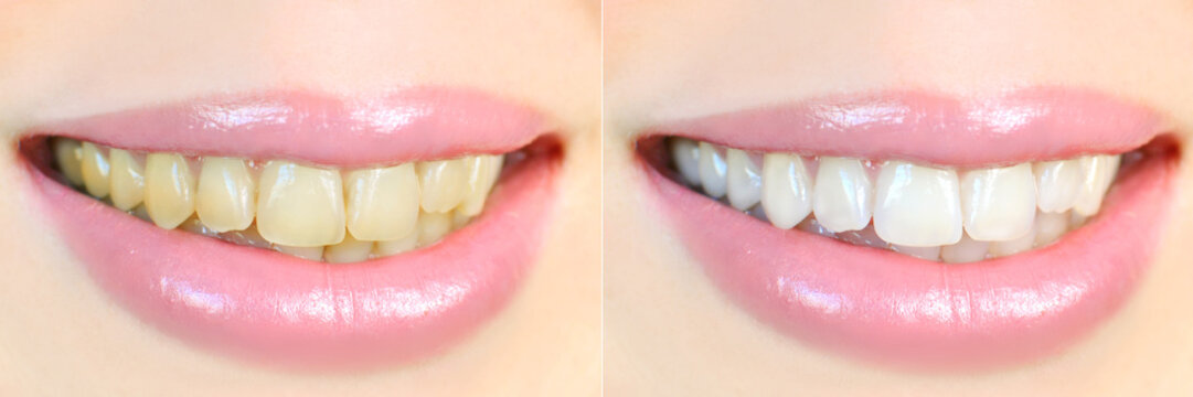 Teeth whitening effect, before and after
