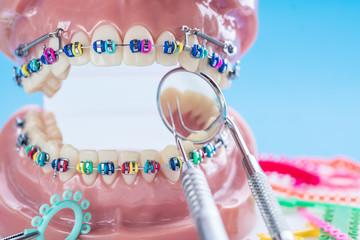 Close up dentist tools and orthodontic model  - demonstration teeth model of varities of orthodontic bracket or brace