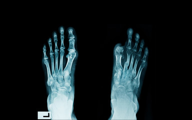 x-ray image of diabetes patient