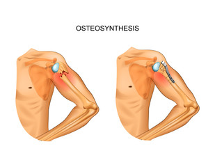 osteosynthesis in the fracture of the humerus head