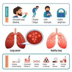 Lung infographic. Cartoon of lung vector infographic for web design