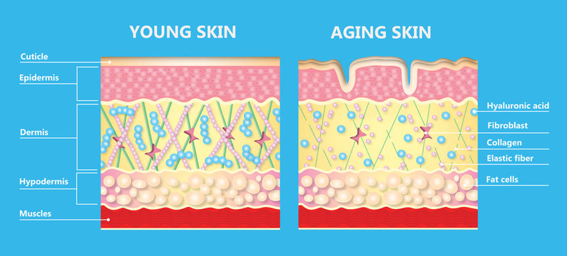 The diagram of younger skin and aging skin