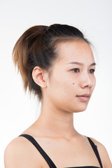 Asian Woman before applying make up hair style. no retouch, fresh face with acne, lips, eyes, cheek, nice smooth skin. Studio lighting white background, for aesthetics therapy treatment