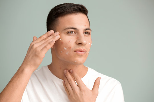 Portrait of young man with applied remedy for acne on grey background