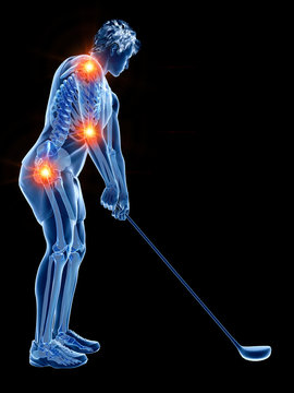 3d rendered medically accurate illustration of the skeleton of a golf player with painful joints